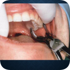 Protocolo de Exodoncia en Odontología