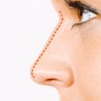 Rinoplastia Operación Cirugía